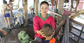 แห่แชร์ช่วยเด็ก 4 ปี ล้มหัวเป็นแผลหนองลุกลามเป็นวงกว้างรักษาแล้วไม่หาย