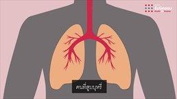 คนสูบบุหรี่-บุหรี่ไฟฟ้า ติด Covid-19 อาการหนักกว่าคนปกติ 14 เท่า