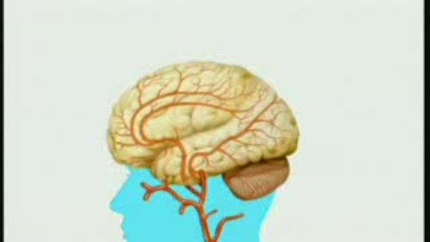 โคเลสเตอรอลกับเรืองหลอดเลือดในสมองซึ่งนำไปสู่อัมพ