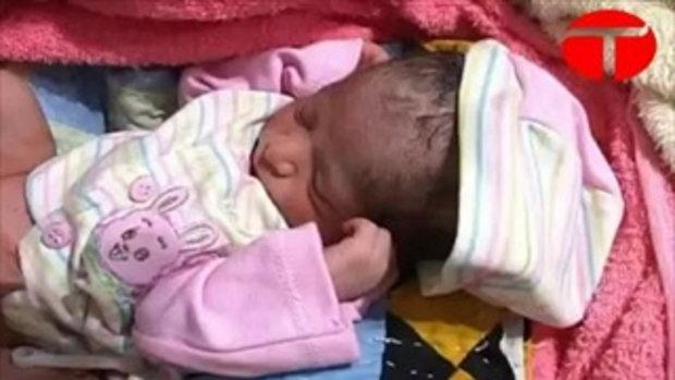 เด็กทารก 6 ขา ที่ปากีสถาน