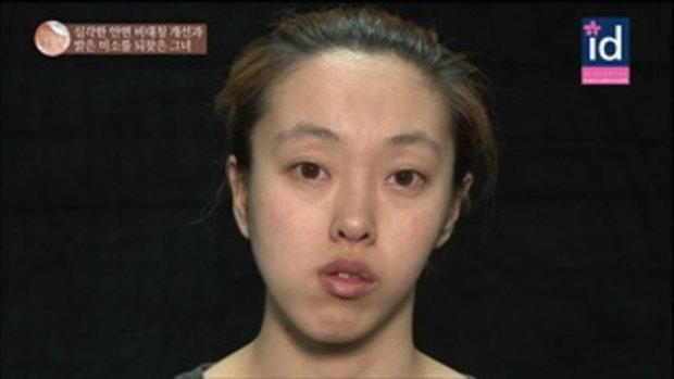 LET ME IN SEASON5 : แปลงโฉมสาวหน้าเบี้ยว HAN JURI ให้กลายเป็นนางฟ้าแสนสวย