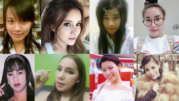 สาวไทย ศัลยกรรมหน้าใหม่ไกลถึงเกาหลี ใครเกิด ใครดับ!