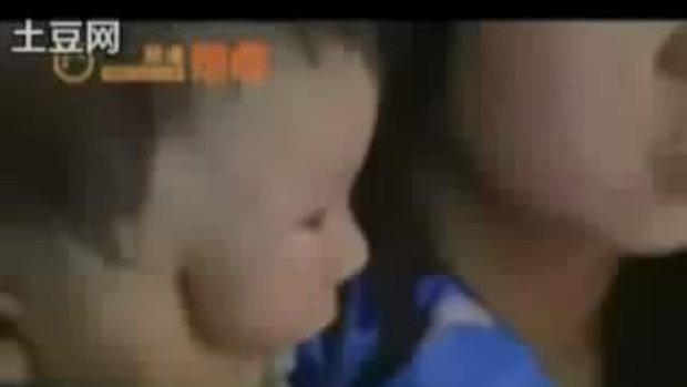 เด็กจีน ใบหน้าซ้อนสองชั้น เหมือนใส่หน้ากาก