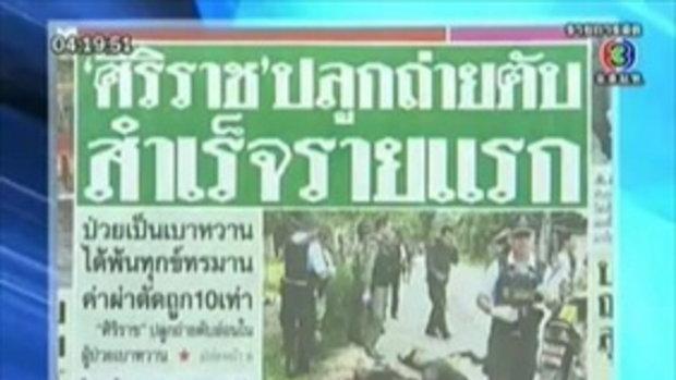 ศิริราชปลูกตับอ่อนรายแรกของไทย
