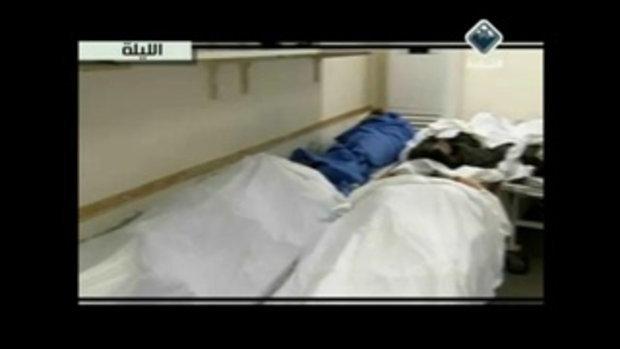 สภาพศพ ทหารลิเบียที่โดนระเบิดจากเครื่องบิน 18+