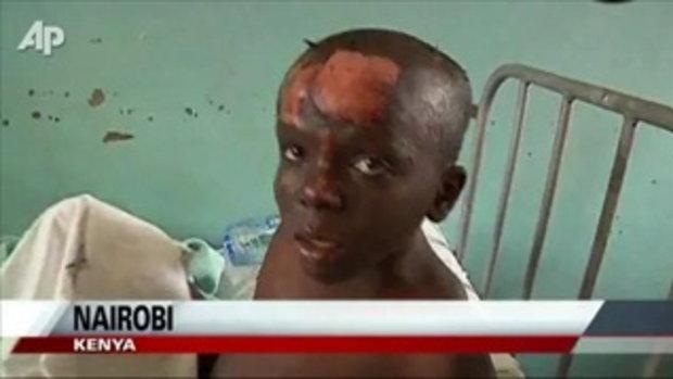 ท่อน้ำมันระเบิดในเคนย่า ตาย 75