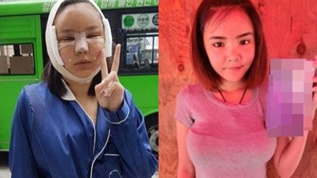 น้องเนย เเฟนเก่ง ลายพราง โพสต์คลิปผ่าตัดเสริมหน้าอก 350 ซีซี เเละศัลยกรรมใบหน้าที่เกาหลี
