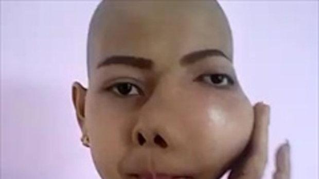 สาวสกลฐานะยากจนป่วยแก้มบวมจากพิษมะเร็ง วอนหมอฝีมือดีช่วยรักษา