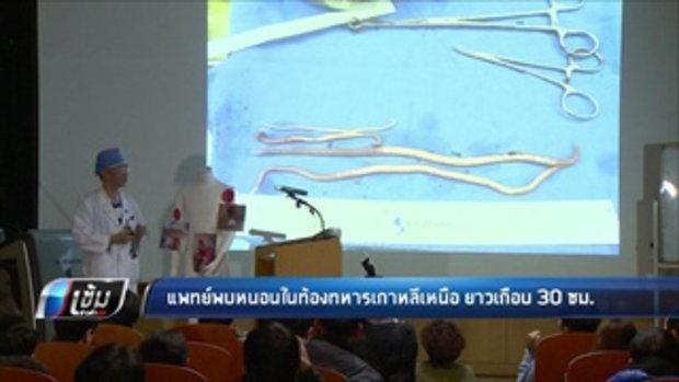 แพทย์พบหนอนในท้องทหารเกาหลีเหนือ ยาวเกือบ 30 ซม. - เข้มข่าวค่ำ