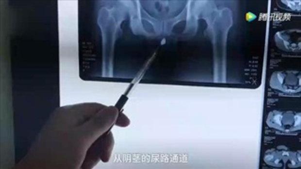 หนุ่มจีนทำพิเรนทร์ ยัดแม่กุญแจใส่ท่อปัสสาวะ สุดท้ายต้องโร่หาหมอ