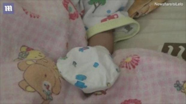 น่าเวทนา ทารกแฝดใบหน้า-สมองติดกัน แต่มีศีรษะเดียว หมอชี้อยู่ได้อีกไม่นาน