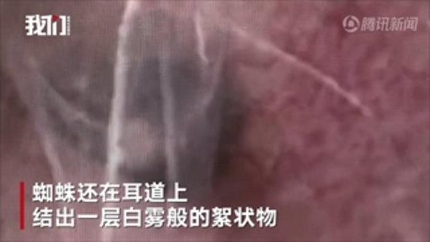 """ขนลุก! ลุงจีนคันหูไม่หาย หมอตะลึงตรวจเจอ """"แมงมุม"""" กำลังชักใยทำรัง"""