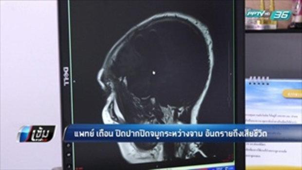 แพทย์ เตือน ปิดปากปิดจมูกระหว่างจาม อันตรายถึงเสียชีวิต - เข้มข่าวค่ำ