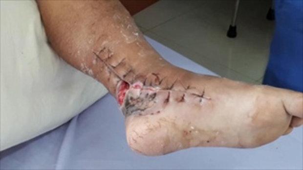 ลุงป่วยโรคเนื้อเน่ากัดขา เปิดใจบอกเริ่มต้นแค่เกา ลุกลามเป็นแผลเหวอะ