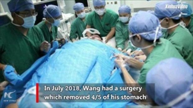 """ครึ่งปีลด 140 กิโลกรัม หนุ่มผู้ """"ลดน้ำหนักได้มากที่สุด"""" ในประเทศจีน"""