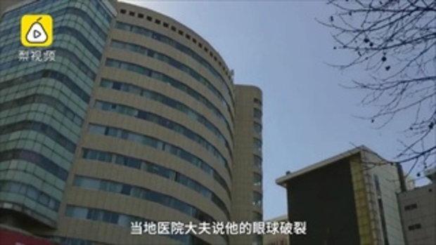 เมาจนภาพดับ หนุ่มจีนเมาหนักเกิดลื่นล้ม ลูกตาหลุดหายไม่รู้ตัว