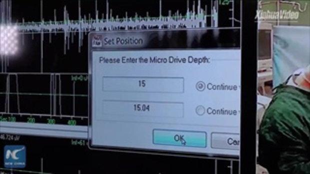 ล้ำไปอีกขั้น แพทย์จีนใช้เทคโนโลยี 5G ผ่าตัดสมองทางไกลกว่า 3,000 กิโลเมตร