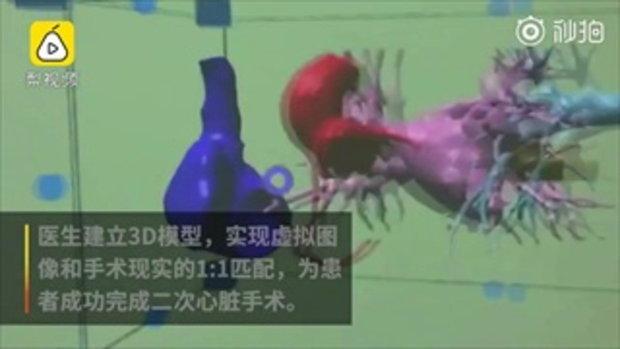 ล้ำไปอีกขั้น แพทย์จีนประยุกต์ใช้ AR ในการผ่าตัดหัวใจเด็ก