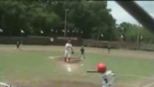 ตีเบสบอลเข้าไปโดนเต็มหน้าเลย
