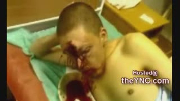 โหดสุดๆ เด็กโดนปืนลูกซองยิงเข้าที่หัว