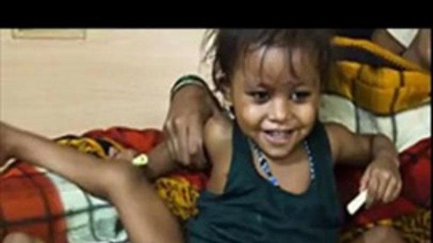 เด็กหญิงอินเดีย มีหลายขา