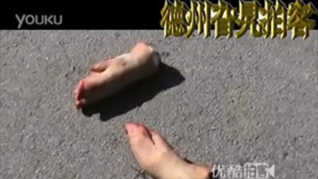 เศร้าอนาถ! ขาขาดเกลื่อนถนน 3ล้อเล็กจีนพลิกคว่ำ