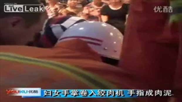 สาวจีน มือติด เครื่องบดเนื้อ