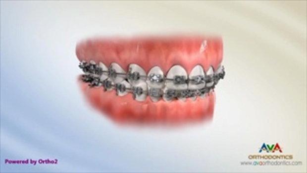 จัดฟัน ทำไมต้องเกี่ยวยาง?