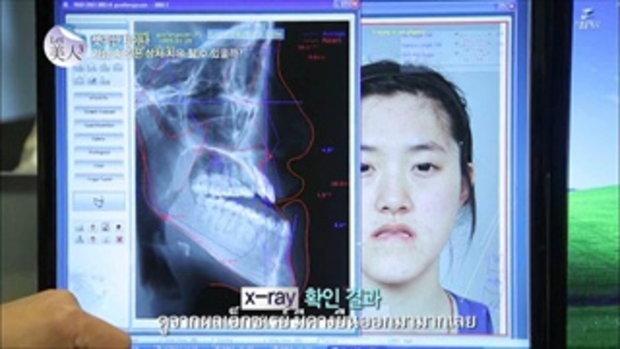 idhospital[โรงพยาบาลไอดี] let me in สาวจีน