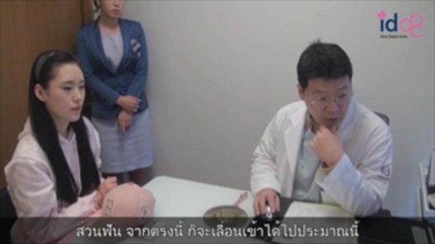 รีวิวศัลยกรรมเกาหลี ก่อนผ่าศัลยกรรมขากรรไกรโรงพยาบาลไอดี ตอนที่2