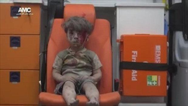 สะเทือนใจ ลูกหลง เด็กชาย Aleppo เหตุระเบิดในซีเรีย คนทั่วโลกช่วยแชร์
