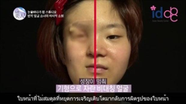 Let Me In ศัลยกรรมเกาหลีสาวหน้าครึ่งเสี้ยว ! ตอนที่ 2
