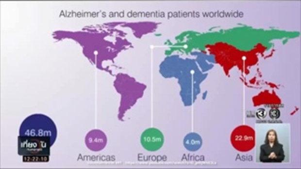 ผู้ป่วยอัลไซเมอร์มีความหวัง ! เมื่อสหรัฐฯพบวิธีรักษาอัลไซเมอร์