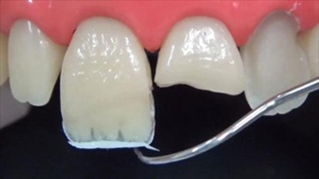 ฟันหัก ฟันบิ่น ฟันแตก อุดฟัน