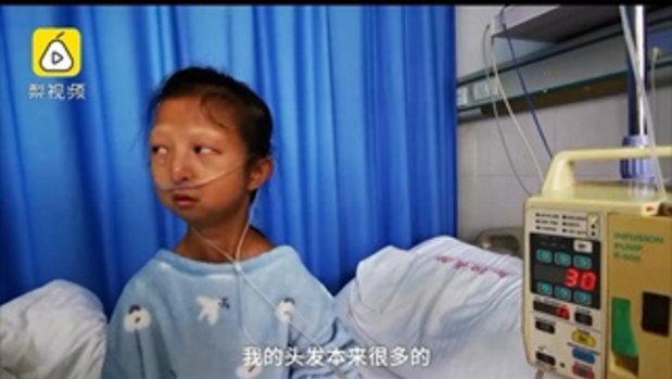 น้องจะต้องรอด! สาวจีนยอมอดๆ อยากๆ เฉียดตาย-น้ำหนักตัวเหลือ 21 กก.