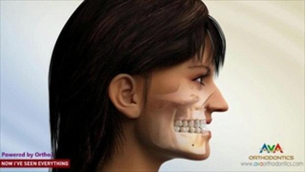 รีวิวการจัดฟันร่วมกับการผ่าขากรรไกร...สวยขึ้นกว่าเดิมมาก !!