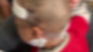 สุนัขพิทบูลขย้ำเด็กชาย 2 ขวบ กะโหลกเปิด แม่กอดลูกรับคมเขี้ยวแทนไม่ห่วงชีวิต