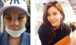 รีวิวสานฝัน ออกไปทำศัลยกรรมถึงเกาหลี