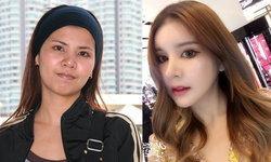 สวยยันกระดูก! สาวไทยทุ่มเงินกว่า 6 ล้าน เปลี่ยนเบ้าหน้าเป็นคนละคน