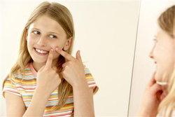 ตำแหน่งสิวบอกโรคและอารมณ์ เช็คด่วน! สิวบนใบหน้าคุณขึ้นจุดไหน?