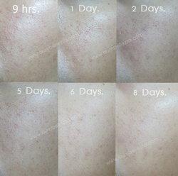 [ ❤ แชร์ประสบการณ์ ❤ ] ทำ Fraxel Fine Treatment สุดยอดวิทยาการย้อนวัยเยาว์