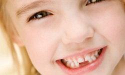 """ระวัง """"ฟันผุ"""" เรื่องเล็กที่หลายคนมองข้าม อาจเสี่ยงโรคร้ายอย่างคาดไม่ถึง"""