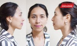 วิเคราะห์จมูกโดยหมอศัลยกรรม เสริมจมูกทรงไหน เหมาะกับรูปหน้าสาวไทย เช็กสิ