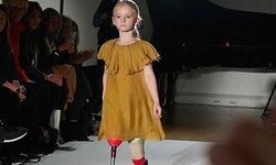 ไร้ขาแต่ไม่ไร้ฝัน! สาวน้อย วัย 7 ขวบ แม้ถูกตัดขา แต่ไม่อายที่จะเดินเฉิดฉายบนรันเวย์