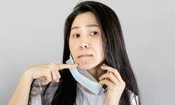 6 วิธีดูแลผิวให้ห่างไกลสิว แม้ต้องใส่หน้ากากอนามัยทุกวัน