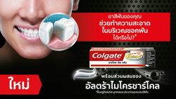 ยาสีฟันของคุณทำความสะอาดซอกฟันได้หรือไม่?