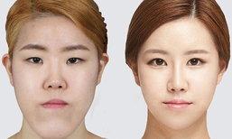 5 เทรนด์ศัลยกรรมสุดฮิต! เนรมิตความเป๊ะแบบสาวเกาหลี