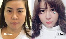 สาวไทย ทุบหน้าใหม่ เปลี่ยนหน้าแก่ก่อนวัย เป็นหน้าสดใสจนสามีหลง