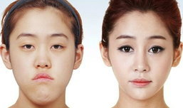 ก่อน-หลัง ศัลยกรรมเปลี่ยนชีวิตสาวเกาหลี