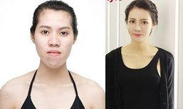 3 สาวไทยศัลยกรรมเปลี่ยนชีวิต ในรายการ Let me in